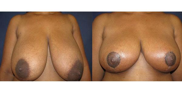 prix reduction mammaire en Tunisie