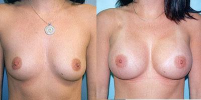 prix implant mammaire