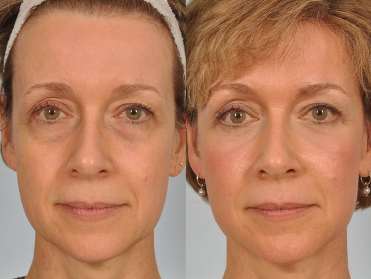 blepharoplastie tunisie prix chirurgie esth tique des paupi res. Black Bedroom Furniture Sets. Home Design Ideas