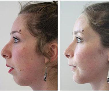 Genioplastie tunisie prix pas cher de chirurgie menton - Operation couper l estomac pour maigrir ...