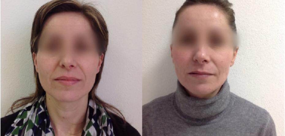 prix lifting cervico facial en Tunisie