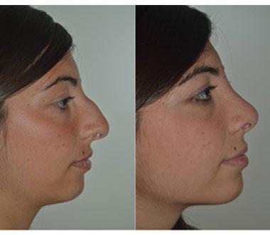 rhinoplastie tunisie chirurgie esthetique du nez avec un prix pas cher. Black Bedroom Furniture Sets. Home Design Ideas