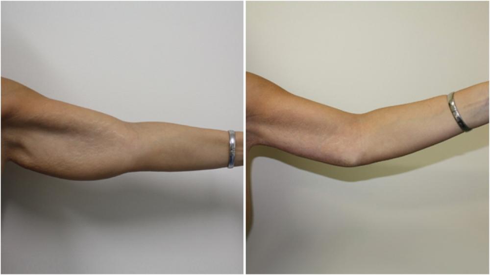 chirurgie esthétique des bras