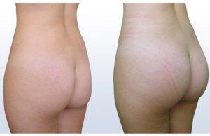 augmentation des fesses par injection de graisse