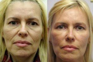 Botox en Tunisie