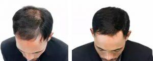 PRP cheveux en Tunisie