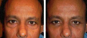 Blepharoplastie laser Turquie
