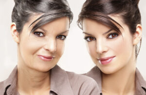Chirurgie visage Turquie