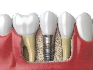 Implant dentaire en Turquie
