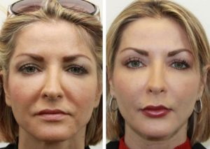 Lipofilling visage Turquie
