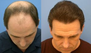 Prix greffe cheveux Turquie