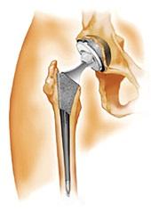 Prothese hanche en Turquie