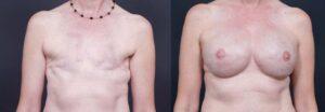 Reconstruction mammaire Turquie prix