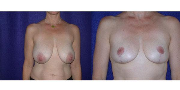 Reduction mammaire en Turquie