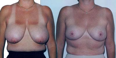 Reduction mammaire prix Turquie