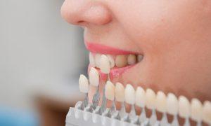 Facette dentaire prix Turquie