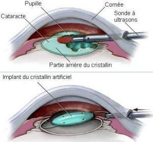 opération cataracte Turquie