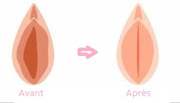 prix Vaginoplastie Turquie